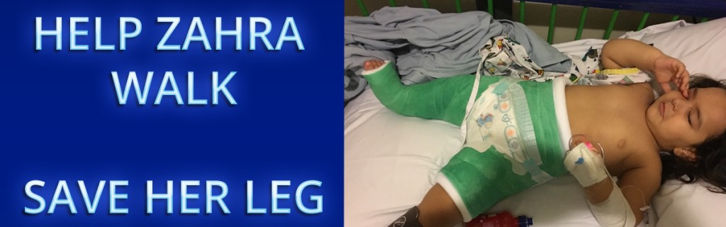 Help toddler Zahra walk - Save her leg